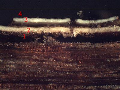 microsopie